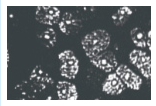 角膜上皮細胞